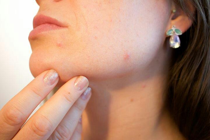 Acne: oltre 30 rimedi naturali per trattarla