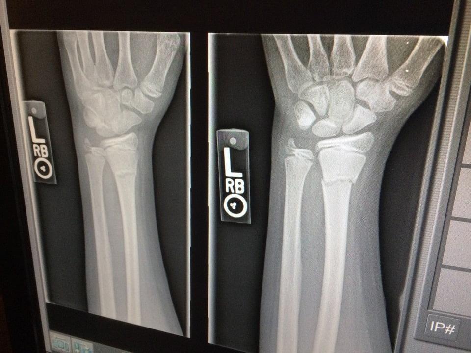 Osteoporosi e mal di schiena: come accorgersene e curarsi in tempo